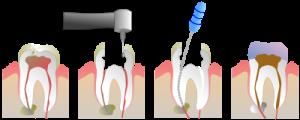 Лечение острого верхушечного периодонтита